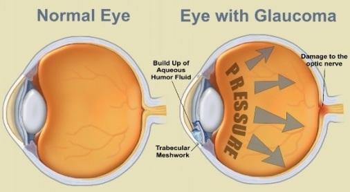 GlaucomaEye